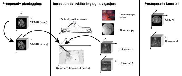 Figur 2: Generisk arbeidsflyt og bilde-til-pasient registrering.