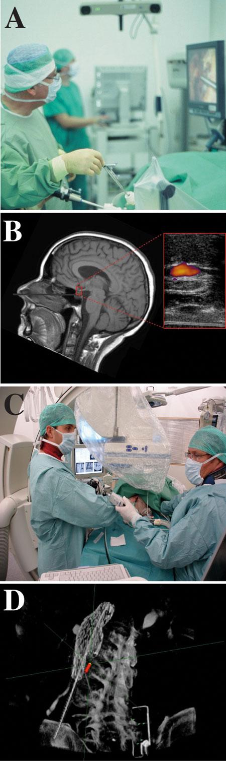 Figur 5: Kliniske applikasjoner. A) Laparoskopisk navigasjon (optisk sporing). B) Nevrokirurgisk reseksjon av en hypofysesvulst. C) Lunge navigasjon i forbindelse med griseforsøk (magnetisk sporing). D) Endovaskulær navigasjon i forbindelse med kateterinnsetting.