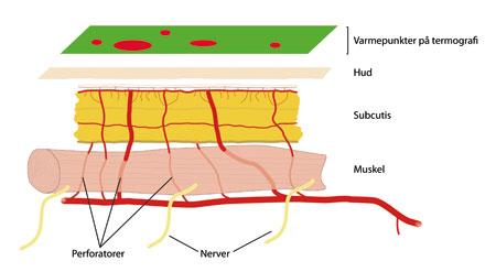 Figur 2: Perforatorer passerer gjennom muskelen på vei til det subdermale pleksus og gir varmepunkter som er synlige på termografi.