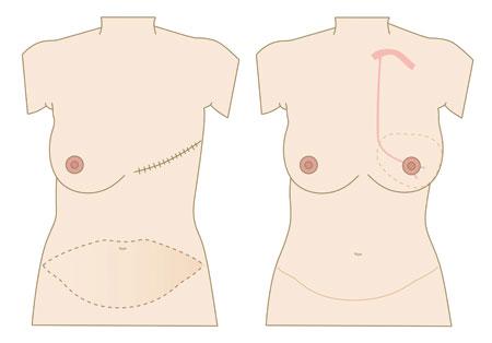 Figur 3: Ved DIEP brystrekonstruksjon flyttes hud og fett fra magen til brystveggen hvor blodforsyningen blir gjenopprettet.