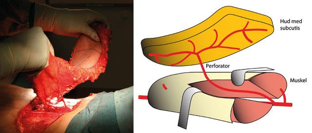 Figur 4: DIEP-lappen er basert på en perforator som kommer fra arteria og vena epigastrica inferior profunda.