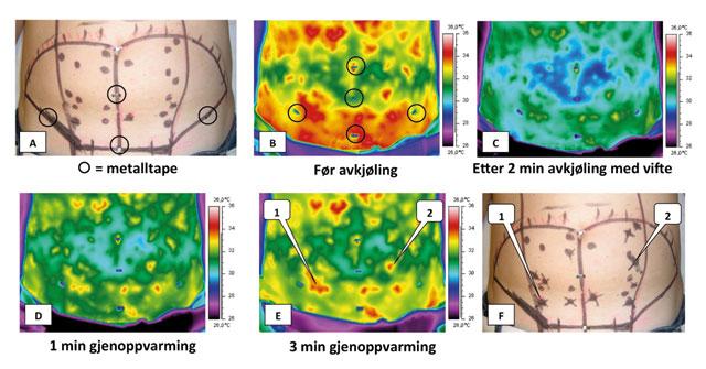 Figur 5: Preoperativt markeres punkter med arteriell Dopplerlyd på huden. Ved DIRT kommer de kraftigste varmepunktene til syne over store perforatorer som her markeres med kryss og samsvarer med arteriell Dopplerlyd.