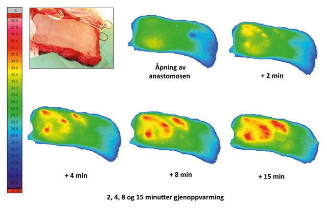 Figur 6: Etter åpning av anastomosen ser vi et oppvarmingsmønster med varmepunkter.