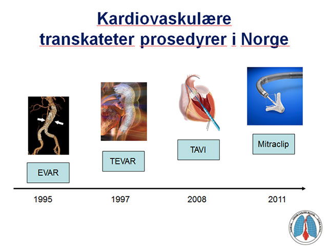 Figur 1. Transkateterbehandling i Norge.