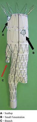 Figur 5. Skjematisk oversikt som viser sidegren, fenestrering og scalloping.