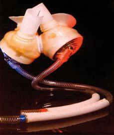 Bilde 6: Total Artificial Heart (TAH)