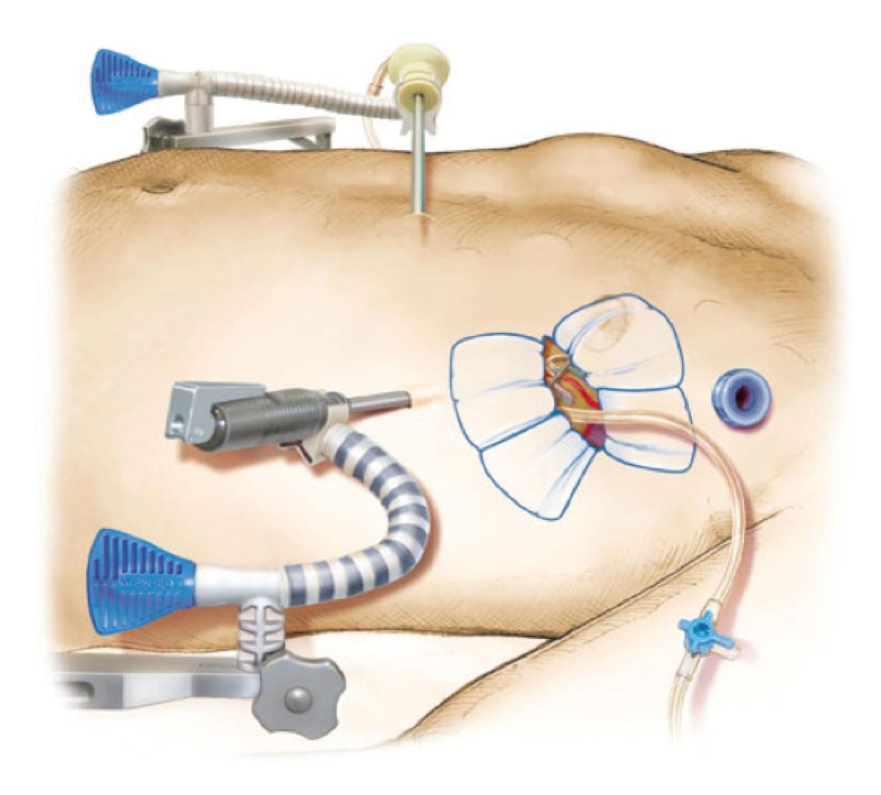 Bilde 3: Mini-invasiv CABG: Videoassistert høsting av a.mammaria interna, anastomoser anlegges via anterolateral mini-thorakotomi på bankende hjerte med stabilisator, uten bruk av hjerte/lungemaskin.