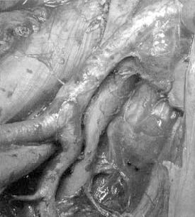 Figur 3. Eksempel på utvidet lymfeknutedisseksjon til høyre i bekkenet. Fettvev inneholdende lymfoid vev er fjernet slik at arteria og vena iliaca communis, externa og interna er helt renset. Disseksjonen går her nesten opp til aortabifurkaturen.