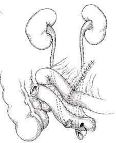 """Figur 4. Kutan ureteroileostomi (""""Bricker"""") der ureteres sutureres til den kraniale delen av et ileumsegment og den kaudale enden legges ut som stomi. Merk at appendix er fjernet."""