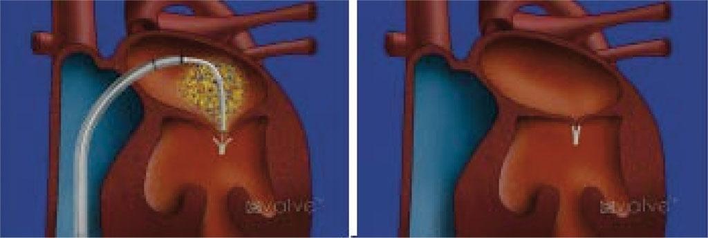 Fig. 1. Animasjon av Mitroclip-R implantasjon