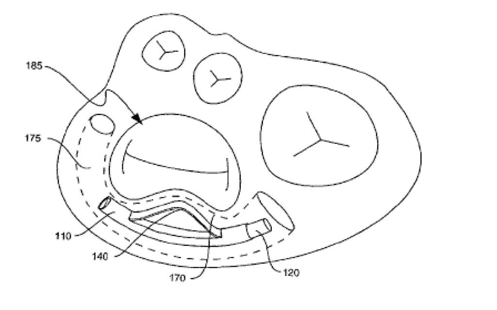 Fig. 5. Tverrsnitt av hjertet som viser device i koronarsinus liggende nær bakre del av mitralklaffen ( Fra US patent søknad)