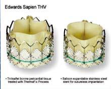 Figur 2. Sapien Edwards transkateter aortaklaff