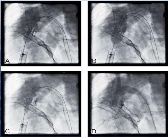Figur 4. Implantasjon av klaff ved fluoroskopi