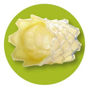 Figur 5. MelodyR ( Medtronic, Minneapolis, USA). Ballongekspenderende klaff for pulmonalklaff implantasjon, sett i ekspandert status.
