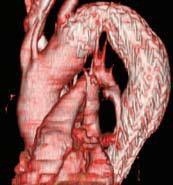 Fig. 2. Implantasjon av stentgraft i torakale aorta kan implanteres med minimalt invasiv teknikk via et snitt i lysken. Her var indikasjonen aortaadisseksjon type B med truende ruptur.