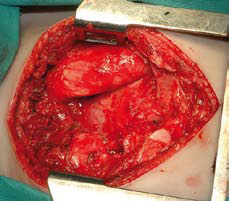 Figur 3, 4 og 5. Stort teratom i fremre mediastinum hos 4 år gammel pike. Det ble utført hasteoperasjon p.g.a. kritisk respirasjonsbesvær grunnet trakeal kompresjon. Rtg. thorax viser et betydelig breddeforøket mediastinum. Operasjonen ble utført vis median sternotomi og viser før reseksjonen en stor tumor i mediastinum og etter fjerning av tumor hvor det ble gode plassforhold.