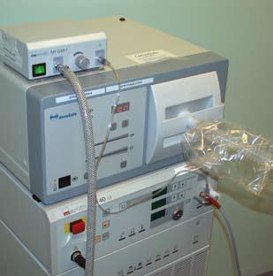 Bilde 2. Apparatur for laser-reseksjon. Som ved endobronkiale reseksjoner (se egen artikkel) benyttes en Nd-YAG-laser