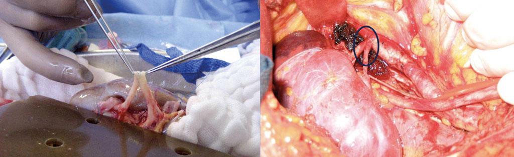Figur 5. Arterioplastikk på transplantatarterier. På bakbord (til venstre) og etter implantasjon (høyre).