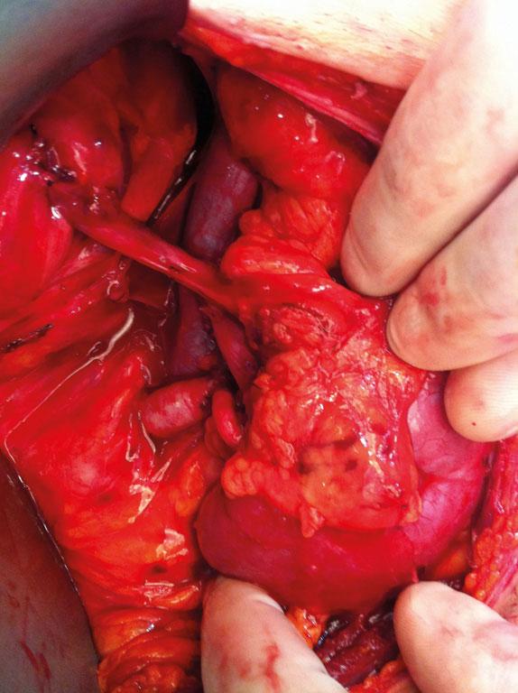 Figur 6. Nyretransplantat etter reperfusjon i hø. lyske m aktuelle anastomoser. Arterieanastomose mot a. iliaca externa.