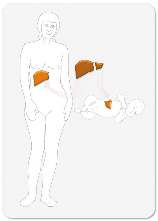 """Figur 3. Illustrasjon av """"splitt-lever"""" transplantasjon ved levertransplantasjon med bruk av en hel lever som deles til en liten voksen og et barn."""