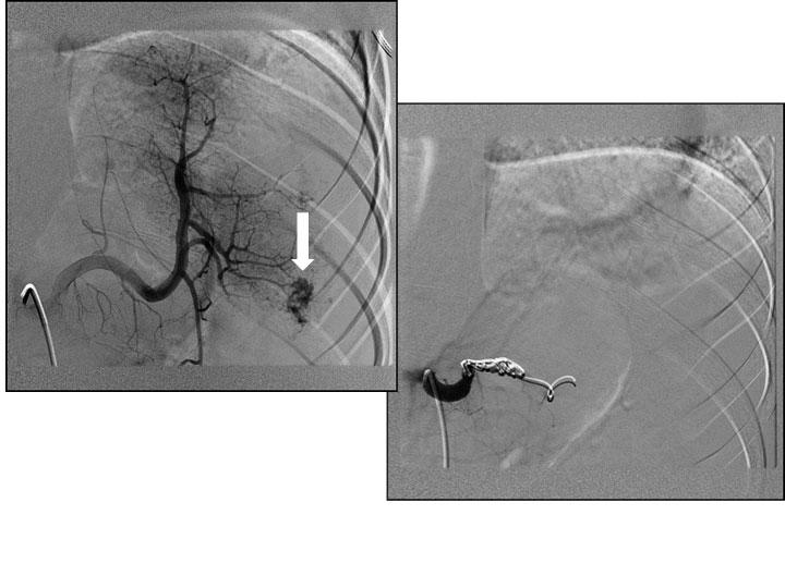 Bilde 2. Angiografi viser pågående blødning (pil på bildet til venstre), gjennomført okklusjonsembolisering av miltarterien (bildet til høyre) og pasienten ble vellykket ikke-operativt behandlet.