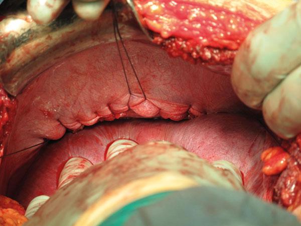 Bilde 8. Lukning av diafragmaruptur ved laparotomi.
