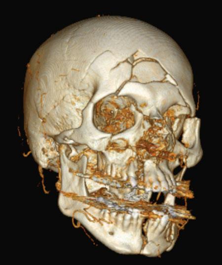 Fig. 1. Tredimensjonalt CT bilde av pasient med multiple ansiktsfrakturer.
