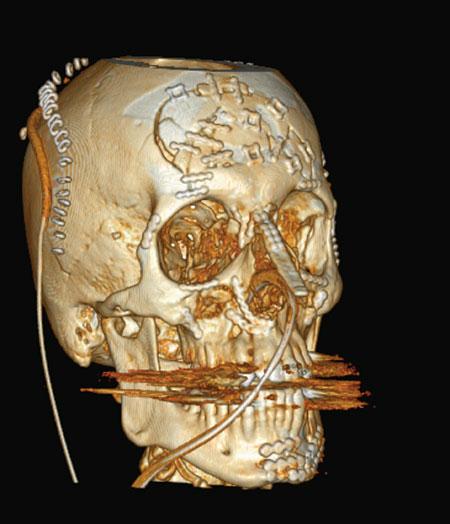 Fig. 2. Tredimensjonalt CT bilde av det postoperative resultatet. Neseskjelettet er rekonstruert med kalvarieben.