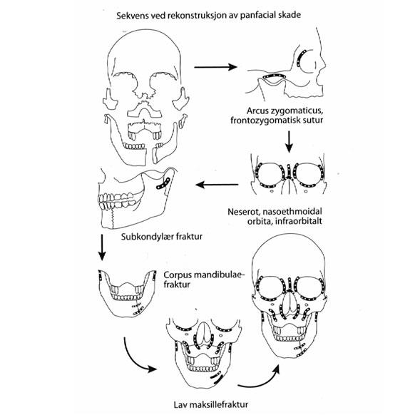 Fig. 5 Sekvens av reposisjon og osteosyntese av multiple ansiktsfrakturer.