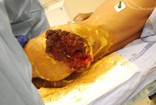 Figur 3a. Bilde av traumatisk sår før (a) og etter (b) initialt debridement med kirurgisk eksisjon av alt synlig nekrotisk vev. Foto: P. Iversen.