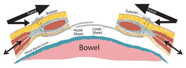 1. Skjematisk fremstilling av TAWT (Trans Abdominal Wound Traction). Borrelås-nettet er festet til bukveggen med gjennomgående suturer lateralt for rectusfascien slik at fasciekantene spares.