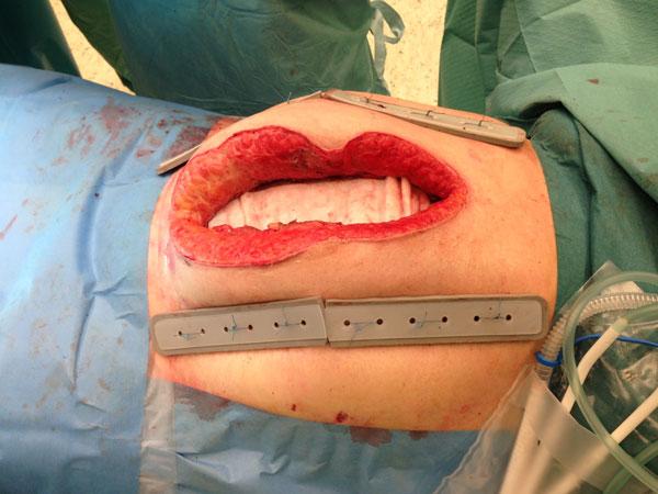 2. TAWT før ytre vac er anlagt. Borrelåssystemet sees under bukveggen. Bolster med hull til suturer er klippet i endene for å tilpasses lengden av snittet.