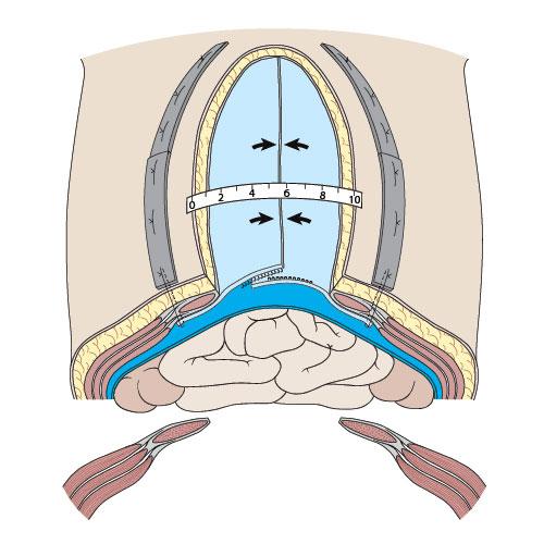 4. Gradvis sammentrekking av bukvegg med TAWT.