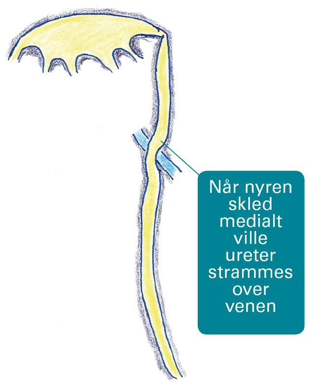 Figur 4.