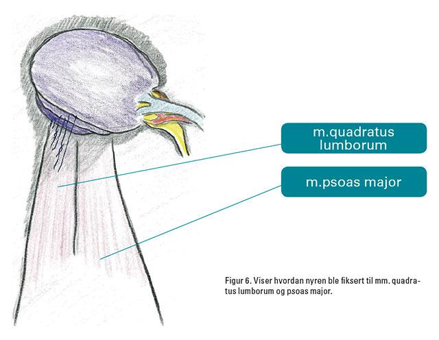 Figur 6. Viser hvordan nyren ble fiksert til mm. quadratus lumborum og psoas major.