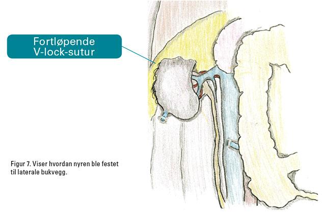 Figur 7. Viser hvordan nyren ble festet til laterale bukvegg.