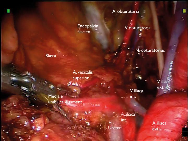 Bilde 4: Synlige anatomiske strukturer ved avsluttet ePLND høyre side.