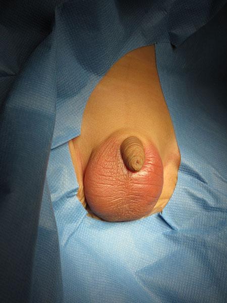Figur 4. Torsjon med nekrotisk testikkel hos et lite barn. Legg merke til rubor og hevelse i scrotalhuden som i denne studien ble påpekt å være et tegn på lite viabel testikkel. Bilder utlånt av Hans Skari.