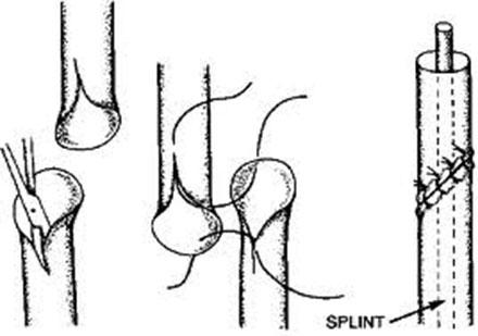Fig. 2. Reanastomosering av ureter