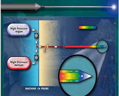 Figur 1. Prinsippskisse som viser gassens strøm gjennom tuppen av kryonålene