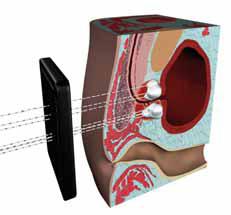 Figur 2. Illustrasjon av nålenes gjennomgang av templaten og plassering i prostata under pågående frysing