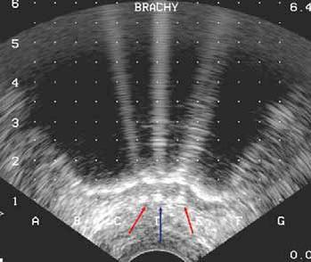 Bilde 5. Ultrasonografisk tverrsnitt som viser isdannelse (sort område) og skygge fra termosensor (blå pil) og varmenåler (røde piler) i rectumveggen