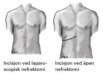 Fig 3: Ved nefrektomi ser vi kanskje den største fordelen med minimalt invasiv teknikk. Pasienten slipper langvarige postoperative smerter forbundet med store laparotomisnitt ved åpen kirurgi og kan reise hjem mye tidligere