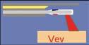 Bilde 1: Skjematisk bilde av fiber og laserstråle i cystoskop, vinkel 110º (skjematisk)