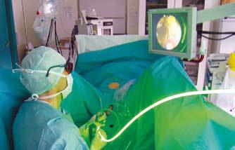 Bilde 4: Praktisk utførelse av laser-vaporisering