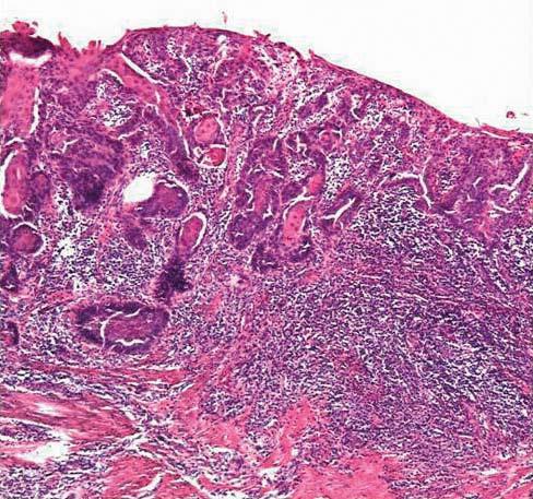 Bilde 2a. Mikroskopisk bilde som viser grov dysplasi gjennom hele epitelets tykkelse med opphevet lagdeling, forenlig med carcinoma in situ. Noter intakt basalmembran (se pil). Hematoxylin-Eosin fargning av biopsi fra penis x 40.