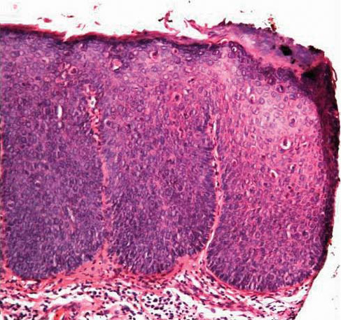 Bilde 2b. Mikroskopisk bilde som viser plateepitelcarcinom. Noter gjennombrudd av basalmembran med øyer av atypisk epitel (se pil). Hematoxylin-Eosin fargning av biopsi fra penis x 40.