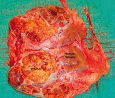Bilde 5. Den typiske snittflaten på et 11 cm stort klarcellet nyrecellekarsinom.