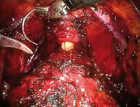 Bilde 5: Suturering av plexus Santorini. Apex prostata og urethra med kateter.