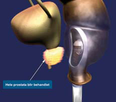 Figur 4. High Intensity Focused Ultrasound (HIFU): Rectal ultralyd probe destruerer prostata cancer